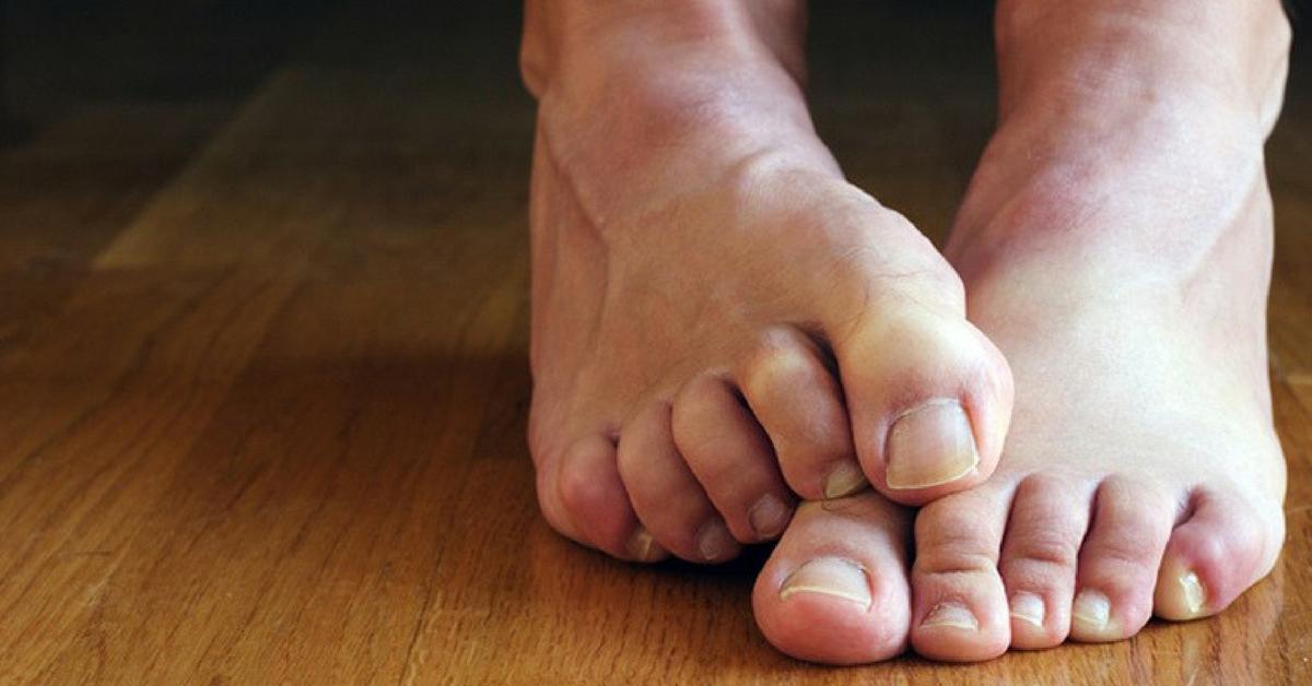 micose nos pés