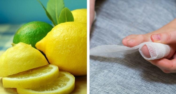 limão para remover calos