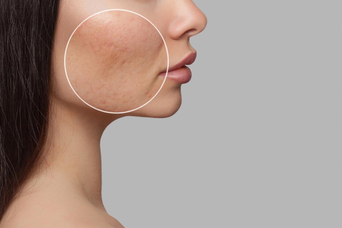 Capa poros dilatados